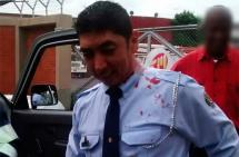 Agente de Tránsito fue herido con una piedra en la cabeza por un motociclista