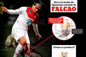 Gráfico: Así es la lesión de ligamento cruzado de Falcao García