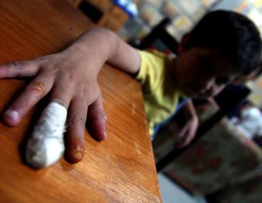 23 menores quemados por pólvora en Nochebuena