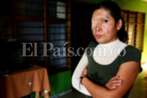 El drama de Yolima, una mujer que lucha por su vida tras ser atacada con ácido