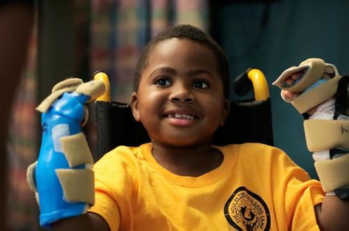 Menor de 8 años, la persona más joven en recibir un trasplante de manos